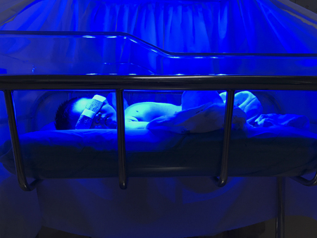 Newborn baby receiving UV phototherapy for jaundice Stok Fotoğraf - 123892520