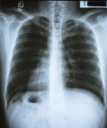 chest x ray: human chest x ray