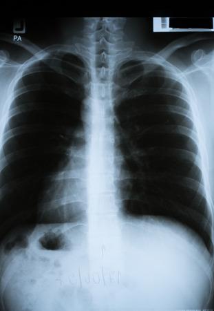 chest x ray: torace umano fotografia a raggi x Archivio Fotografico