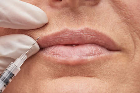 Beuty concept. Close up shot of a woman making lip augmentation procedure by cosmetologist