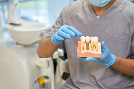 Qualified dentist in mask a gloves with a dental implant model