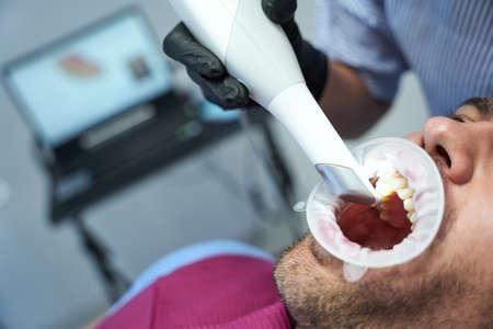 Young man having dental laser treatment at clinic