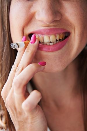 dientes sucios: Mujer que fuma tiene los malos dientes amarillos