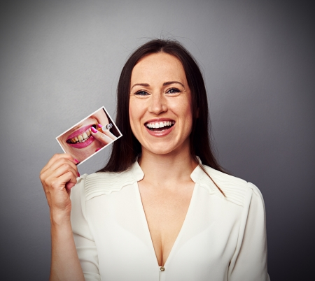 dentists: healthy happy woman holding picture with dirty yellow teeth