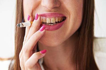 malos habitos: Mujer sonriente con los dientes sucios amarillo con cigarrillos Foto de archivo