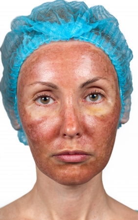 full face: Cosmetology. Skin condition after chemical peeling TCA. person full face