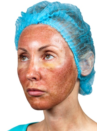 Cosmetology. Skin condition after chemical peeling TCA. foreshortening in three quarters