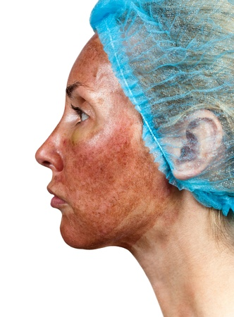 Cosmetology. Skin condition after chemical peeling TCA. the person in a profile photo