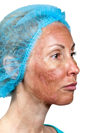Cosmetology. Skin condition after chemical peeling TCA. The beginning of tearing away of the top burned layer, around a cheek photo