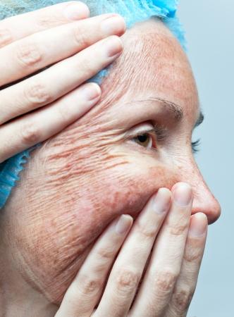 """acido: Cosmetolog�a. El peeling qu�mico. """"Pergamino"""" piel antes de ser rechazado."""