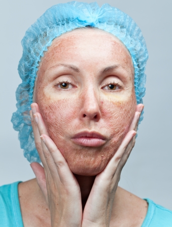 Cosmetology. Chemical peeling. Parchment skin before rejection.   photo