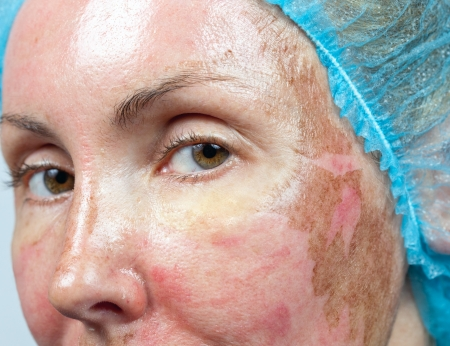 burned: Cosmetology. New skin after a chemical peeling, a redness because of too fast deleting an old layer. Stock Photo
