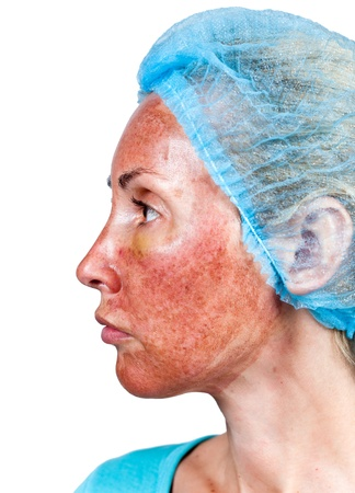 Cosmetology. Skin condition after chemical peeling TCA.top burned layer  photo