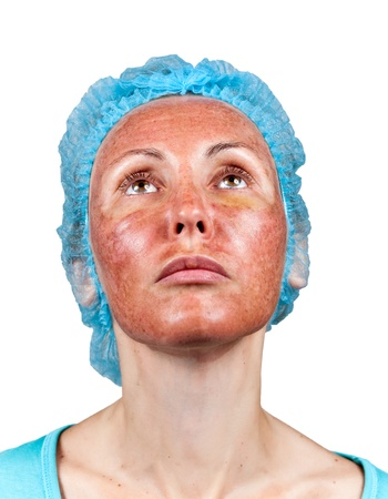 Cosmetology. Chemical peeling. Boundary between the processed and healthy skin on a neck.   photo