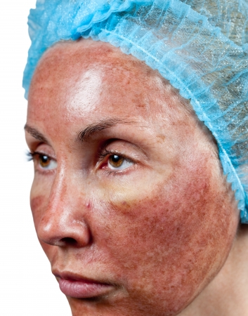 Cosmetology. Skin condition after chemical peeling TCA. The beginning of tearing away of the top burned layer, photo