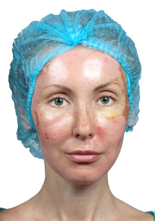 face off: Cosmetology. New skin after a chemical peeling, a redness because of too fast deleting an old layer. Stock Photo