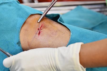 Doctor suturing cut wound first stitch