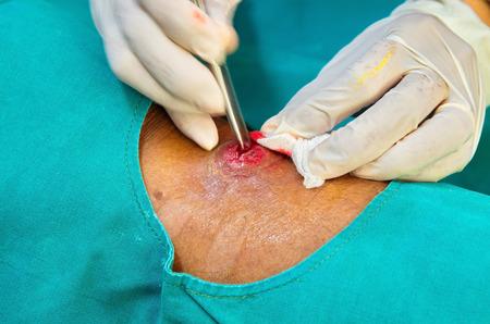 herida: sondear herida absceso
