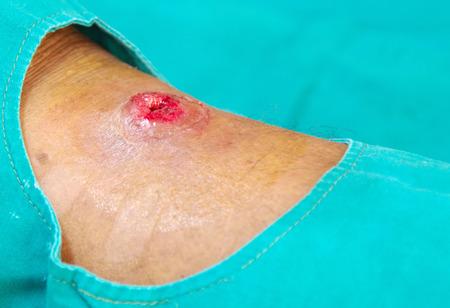 abscess: fresh hole abscess wound
