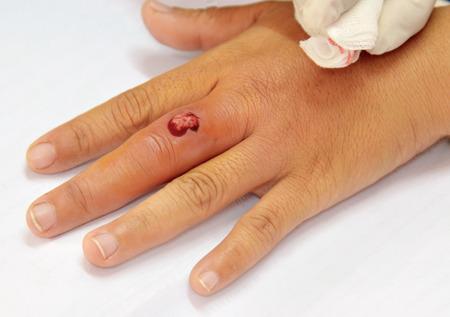 pus: finger infezione Archivio Fotografico