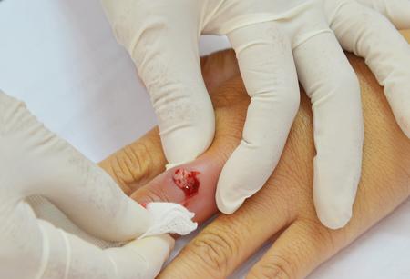 abscess: doctor treated finger abscess