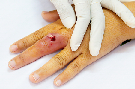 aseptic: finger abscessed Stock Photo