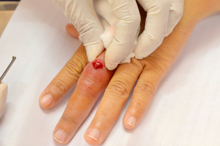 pus: doctor was squeezing pus infected wound