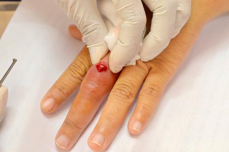 pus: medico stringeva pus infetto ferita
