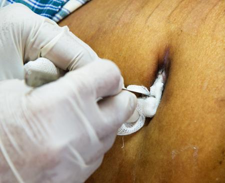 abscess: abscess wound from intected