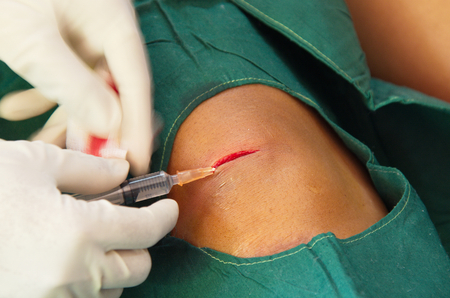 suture: Doctor was injecting  before suture.