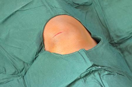 suture: nature cut wound prepair for suture. Stock Photo