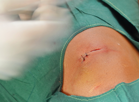 suture: suture second stitches incision wounds