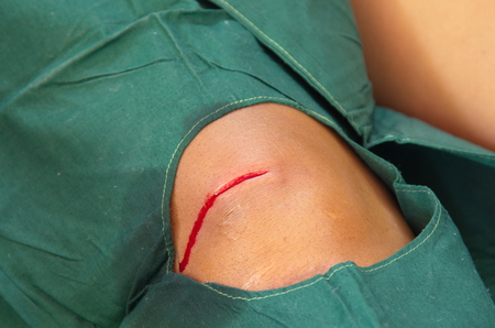 suture: Knee incise wound bleeding before suture.