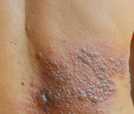 sarpullido: Infectados de virus Herpes Zoster paciente. Foto de archivo
