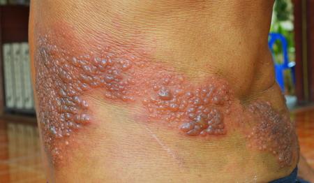 herpes: Herpes Zoster around skin waist .
