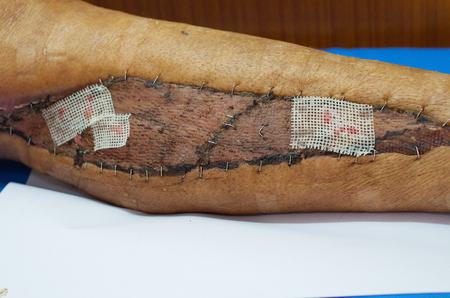 graft: Vaseline gauze dressing on Skin graft wound. Stock Photo
