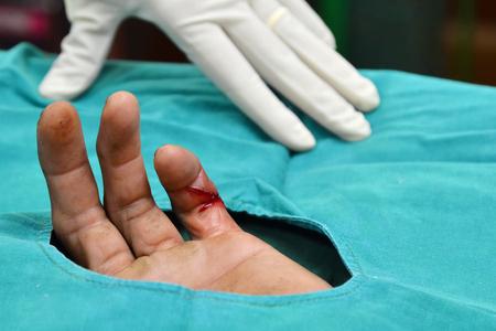 suture: incision wound will suture with sterile technique.
