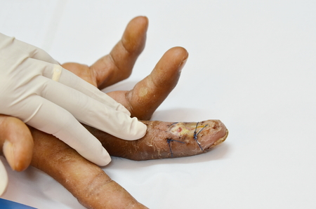 suture: Finger suture infection wound.