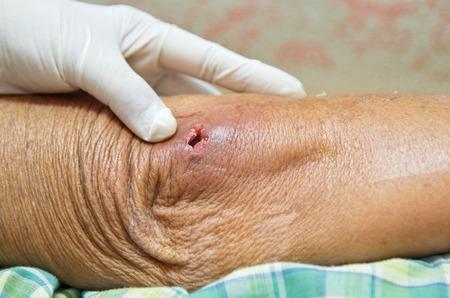 abscess: Abscess hole at elbow.
