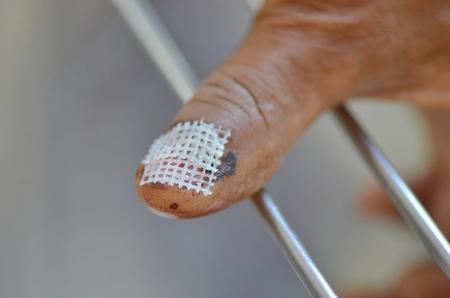 Hematoma nail closed Vaseline gauze.