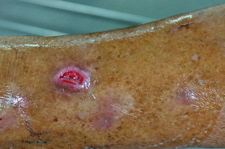 Patient cleaned wound in hospital.