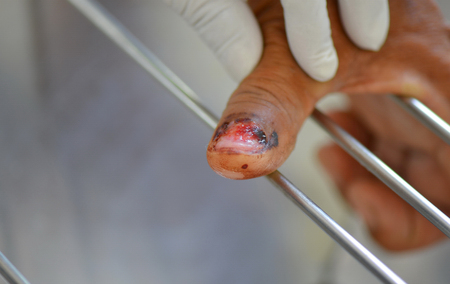 Toe wound  cared after remove the nail.
