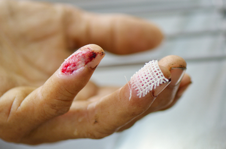Fingers wound before cleaning.