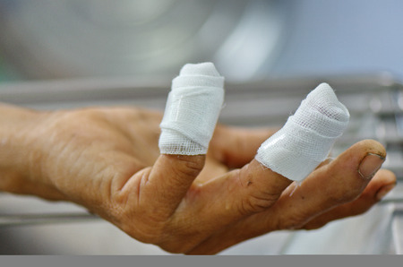 Fingers wound with gauze on dressing stool.