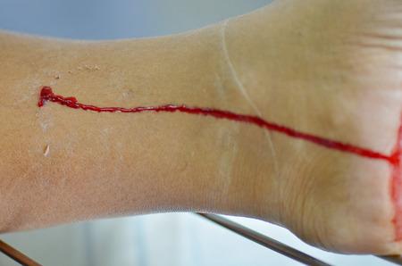 Dog bite leg bleeding wound.
