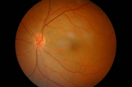 Eye diabetes background.