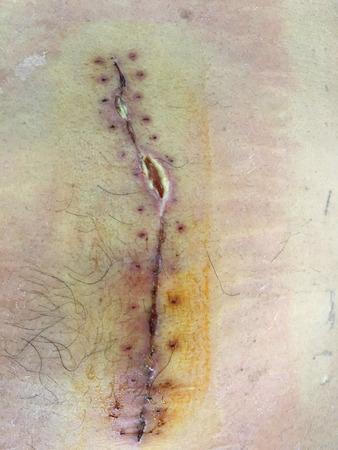 Stitches wound  gallstone surgery. 写真素材