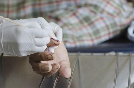 dressing finger wound. 写真素材