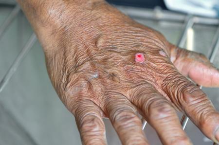 Elderly hand has incise wound.