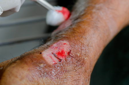 Doctor was cleaning laceration wound  hand.